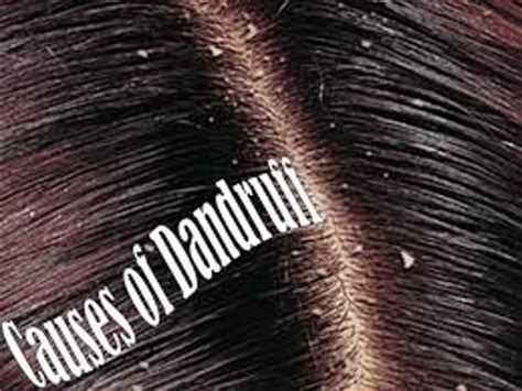 About Dandruff - Assignment Point